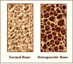 synchrony chirocare office blog normal bone osteoporotic