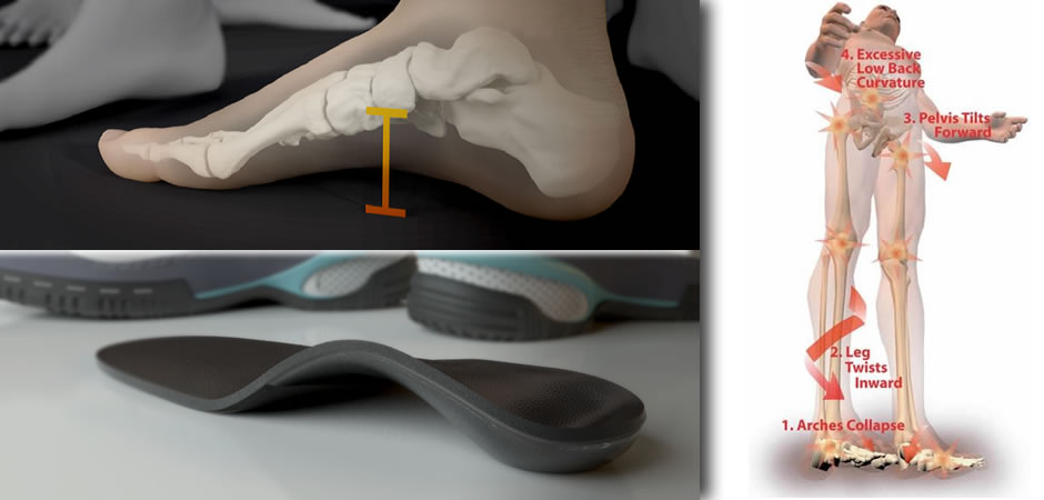 Showcase_Custom_Foot_Orthotics